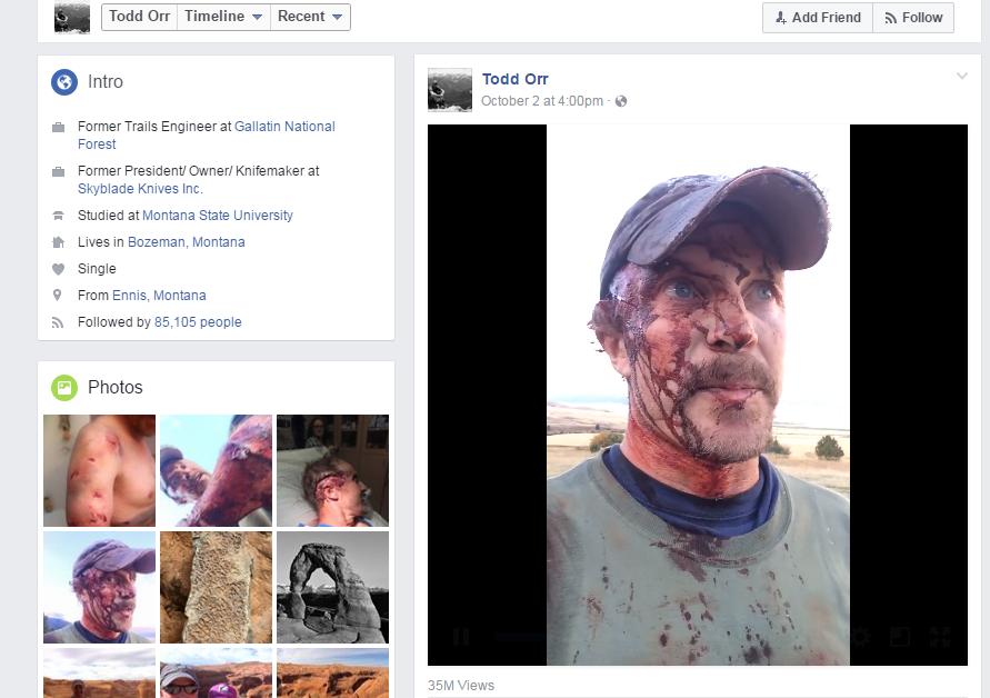 Man describes bear attack on Facebook